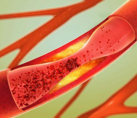 thromvofilia-aimatologoi