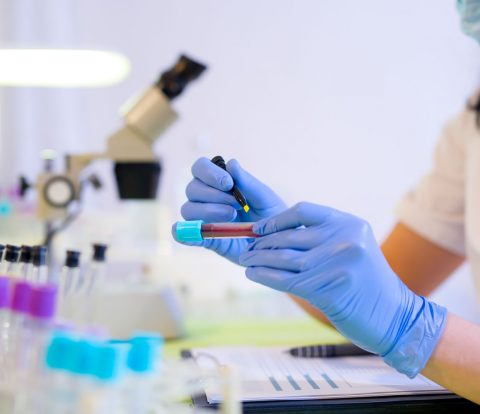mikroviologoi-aimatokritis