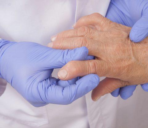 reumatologoi-arthritida